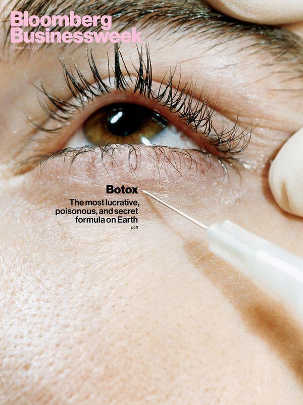 طرجح جلد نشریه بلومبرگ با موضوع بوتاکس